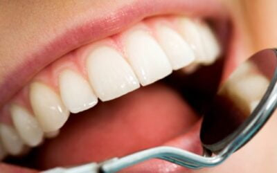 Composite fillings vs amalgam fillings