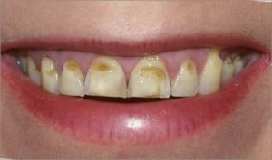 Combat Acid Wear- To Reduce Teeth Erosion