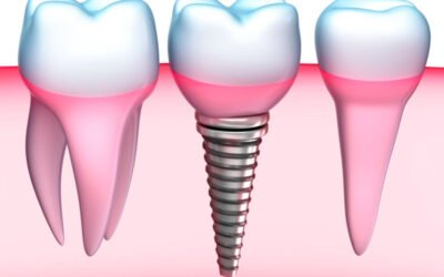 What You Need To Know About a Dental Implant Procedure