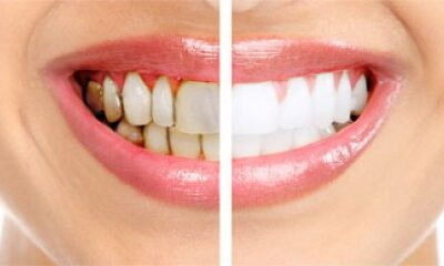 Natural Remedies for Whitening Teeth