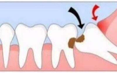 The Importance Of Wisdom Tooth Removal