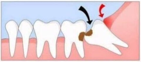 The Importance Of Wisdom Tooth Removal | Dentist ...