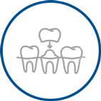 Dental Crowns & Bridges South Georgetown Dental Icon