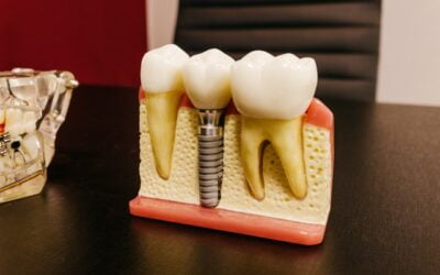 Why You Need Dental Implants