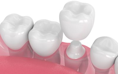 Fix Your Teeth With Dental Bridges And Crowns